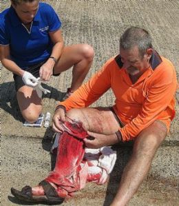 13/10/2008 GENERAL: 13/10/2008 GENERAL: The man was bitten, in his boat, by a shark he had caught in the harbour. Pic. Supplied Pic. Supplied